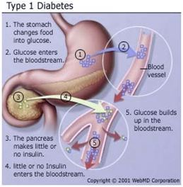 http://www.southvet.com.au/Images/diabetes_vp.JPG